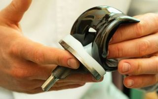 Эндопротезирование коленного сустава, цена и другие условия