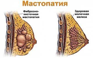 Маклюра мазь для суставов: свойства, показания, народные рецепты