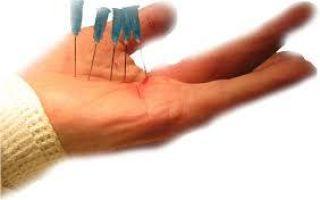 Болезнь нота: что такое, диагностика, лечение медикаменты, мази и хирургия