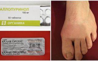 Медикаментозное лечение подагры: препараты выводящие мочевую кислоту
