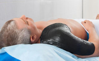 Лечение артрита народными средствами в домашних условиях: рецепты