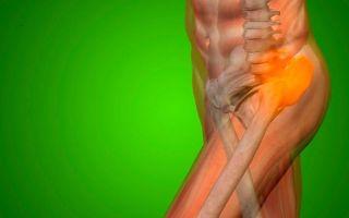 Боль в тазобедренном суставе: причины, лечение, что делать и как лечить
