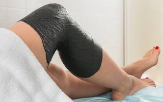 Гигрома коленного сустава: симптомы и лечение