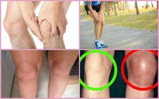 Деформирующий артроз коленного сустава: симптомы, лечение 1, 2, 3 степени