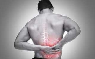 Боль в пояснице у мужчин: причины, почему болит поясница и что делать