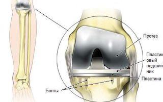 Посттравматический артрит суставов: как избежать, диагностировать и лечить