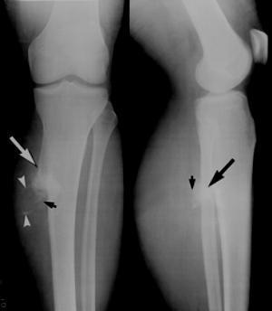 Остеохондрома бедренной кости: причины, симптомы и лечение