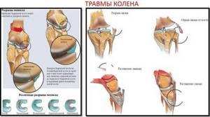 Оценка состояния тазобедренных, голеностопных и коленных суставов