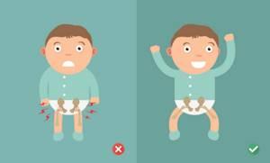 Дисплазия тазобедренных суставов у детей: лечение, симптомы, причины
