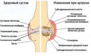 Артроз плечевого сустава: лечение в домашних условиях народными средствами