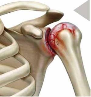 Артрит плечевого сустава: причины, симптомы и лечение