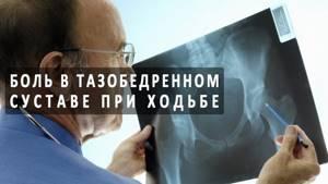 Боль в бедре: причины, диагностика, основные методы лечения