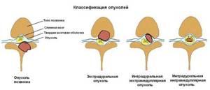 Рак позвоночника. Симптомы и лечение