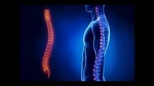 Лечение и симптомы деформирующего спондилёза позвоночника