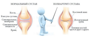 Как лечить симптомы полиартрита коленного сустава?