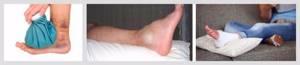 Ушиб голеностопного сустава: симптомы, первая помощь, лечение