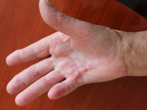 Лечение в домашних условиях контрактуры Дюпюитрена