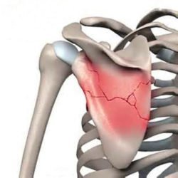Болит спина в области лопаток: причины боли, диагностика