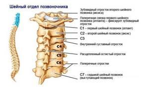 Обзор мазей при остеохондрозе шейного отдела позвоночника