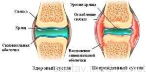 Диета при заболеваниях коленных и тазобедренных суставов