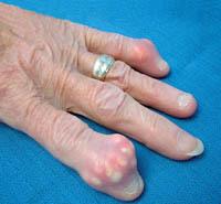 Болезни суставов пальцев рук: лечение основных диагнозов