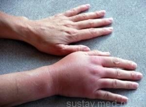 Растяжение связок запястья: симптомы и лечение травмы