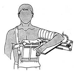 Видео доклад: оскольчатые диафизарные переломы плеча. А.А. Волна (Москва