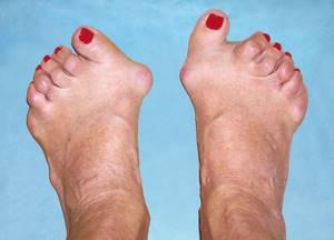 Артрит: симптомы и признаки, диагностика и лечение