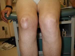 Гонартроз коленного сустава 3 степени: лечение, причины, симптомы