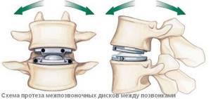 Тест на оценку предрасположенности к остеохондрозу позвоночника