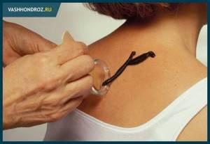 Пиявки при остеохондрозе шейного отдела: польза от гирудотерапии