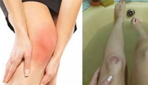 Что делать, если опухло колено без ушиба и болит