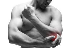 Медиальный эпикондилит локтевого сустава: что такое и как лечить
