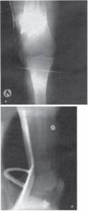 Видео презентация: переломы дистального отдела бедренной кости. И.Г. Беленький (С-Петербург)