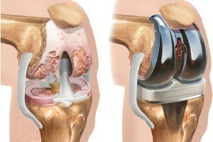 Боли после эндопротезирования коленного сустава, это нормально
