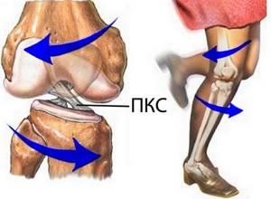Лечение растяжения и разрыва связок коленного сустава в домашних условиях