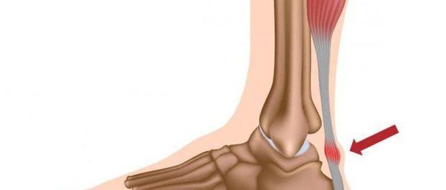 Тендинит ахиллова сухожилия: диагностика и лечения стопы