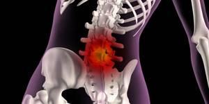 Дорзальная грыжа диска - симптомы, диагностика и лечение
