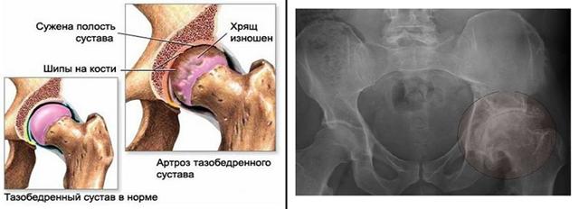 Народные способы лечения артроза тазобедренного сустава
