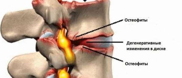 Остеофиты — что это такое. Причины и лечение