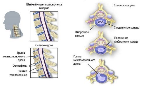 Никотиновая кислота в лечении болезней суставов и позвоночника