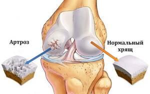 Лечение суставов магнитом в домашних условиях