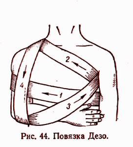 Выбираем бандаж плечевого сустава, какой лучше