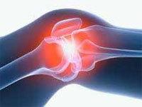 Периартрит коленного сустава: симптомы и лечение, причины, диагностика