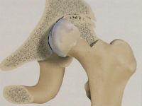 Коксартроз тазобедренного сустава 4-й степени: лечение и операция