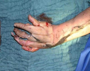 Лангетка на руку: виды, типы, особенности и различия