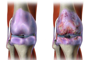 Блуждающие боли в суставах и мышцах: заболевания, схемы лечения