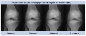 Внутрисуставные инъекции в коленный сустав: список препаратов