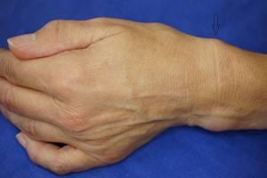 Тендовагинит сухожилий: причины, симптомы и способы лечения