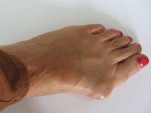 Артроз стопы: симптомы и лечение, фото, причины развития болезни